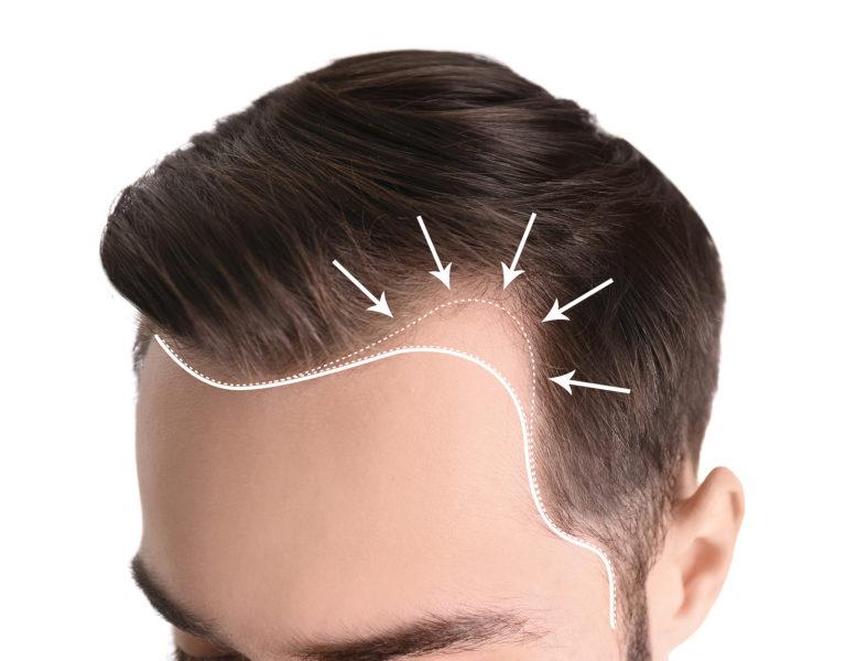 Haartransplantations Methoden – hochmoderne Techniken entdecken